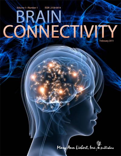 Результаты исследования были опубликованы в журнале Brain Connectivity.